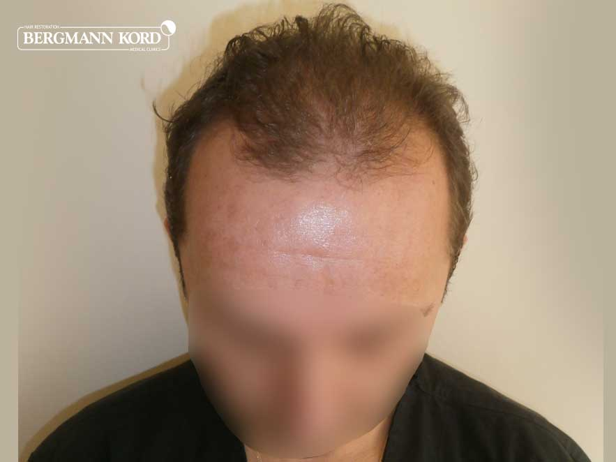 hair-transplantation-bergmann-kord-results-men-53012PG-before-top-001