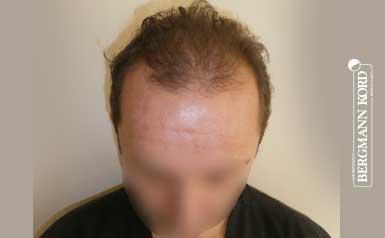 hair-transplantation-bergmann-kord-results-men-53012PG-thumb-001