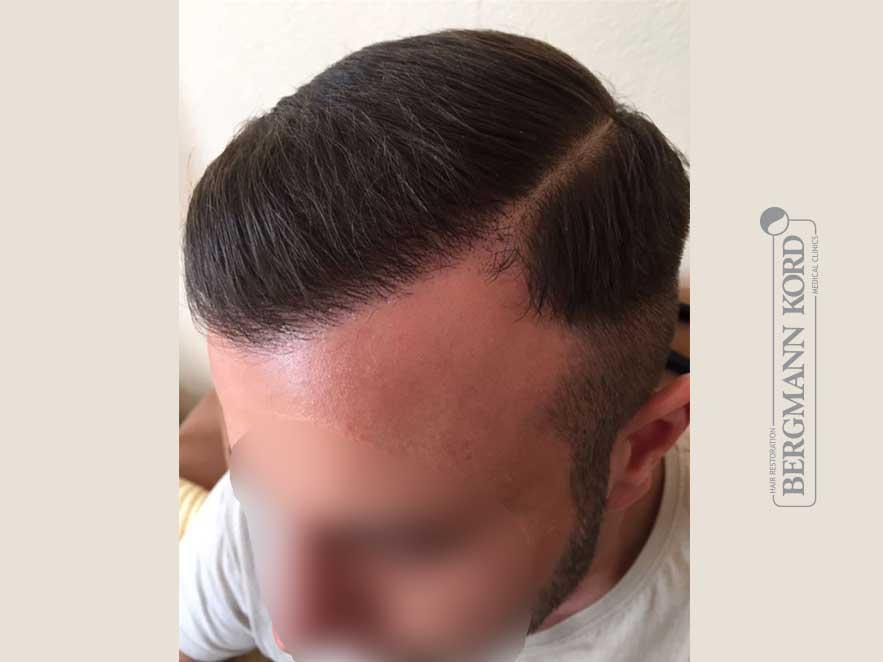 hair-transplantation-bergmann-kord-results-men-53046PG-after-left-001
