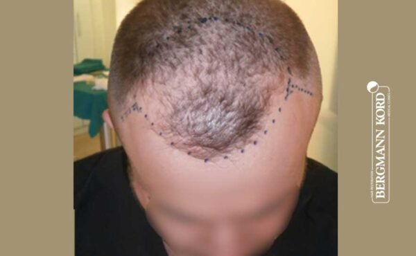 hair-transplantation-bergmann-kord-results-men-53046PG-before-front-001