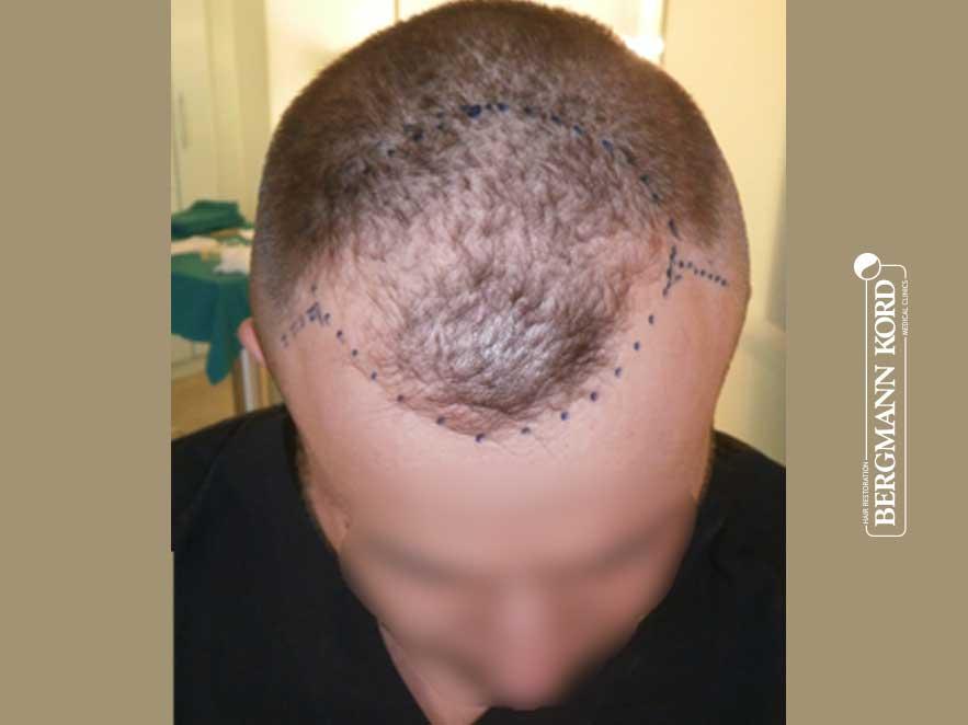 hair-transplantation-bergmann-kord-results-men-53046PG-before-front-001