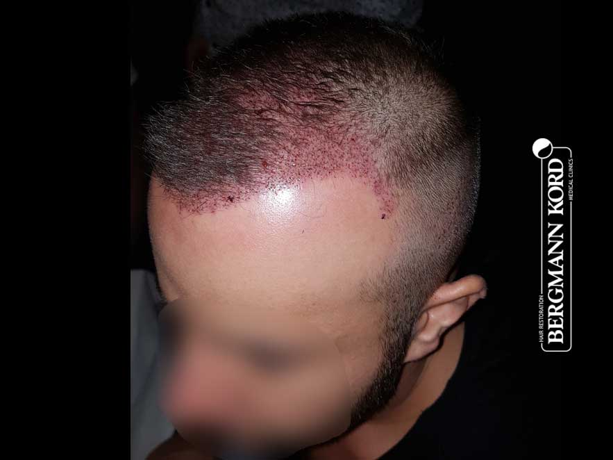 hair-transplantation-bergmann-kord-results-men-53046PG-before-left-001