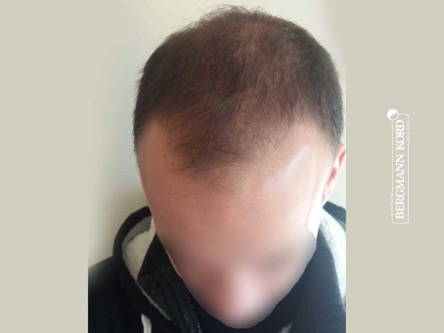 hair-transplantation-bergmann-kord-results-men-55008PG-before-top-001