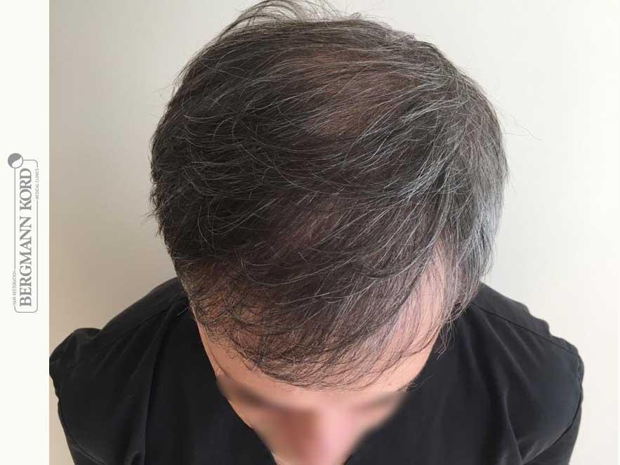 hair-transplantation-bergmann-kord-results-men-55015PG-after-top-001