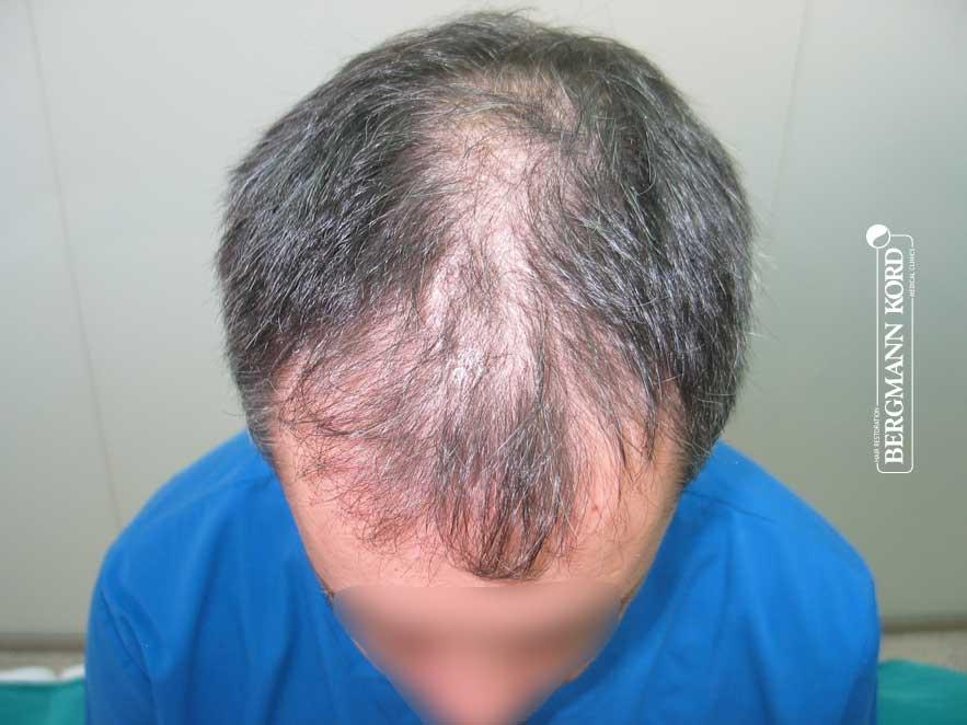 hair-transplantation-bergmann-kord-results-men-55015PG-before-top-001