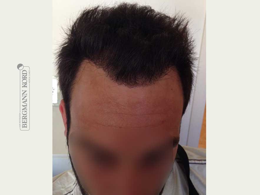 hair-transplantation-bergmann-kord-results-men-56022PG-after-top-001