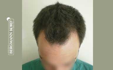 hair-transplantation-bergmann-kord-results-men-56022PG-thumbnail-001