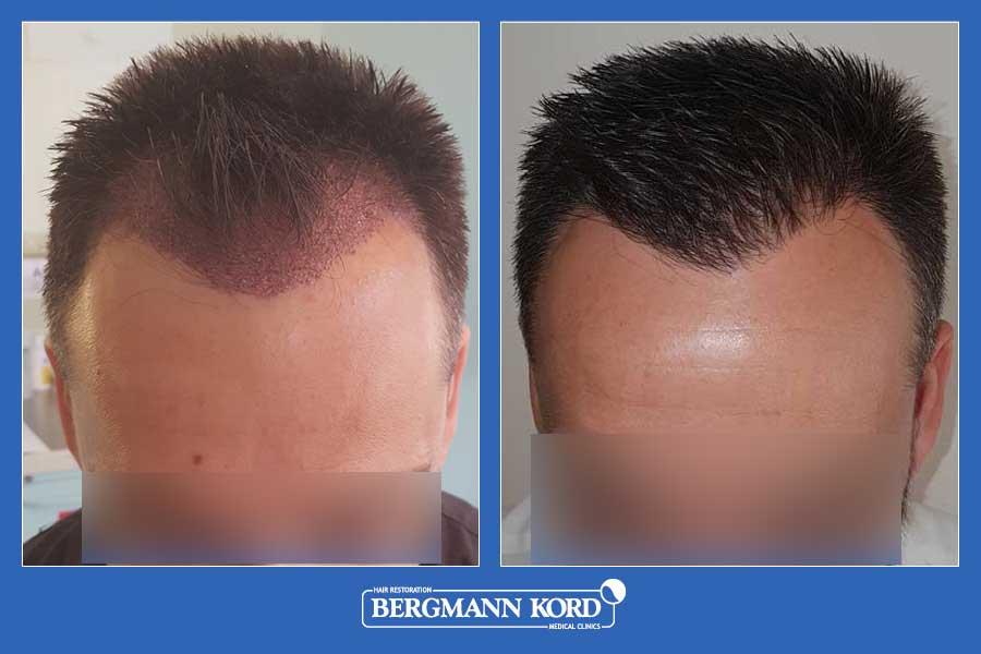 hair-transplantation-bergmann-kord-results-men-56047PG-before-after-002