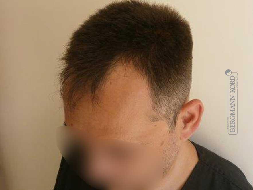 hair-transplantation-bergmann-kord-results-men-56047PG-before-left-001