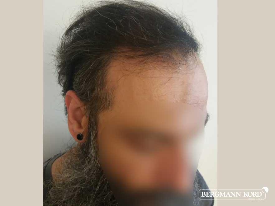 hair-transplantation-bergmann-kord-results-men-57005PG-after-right-001