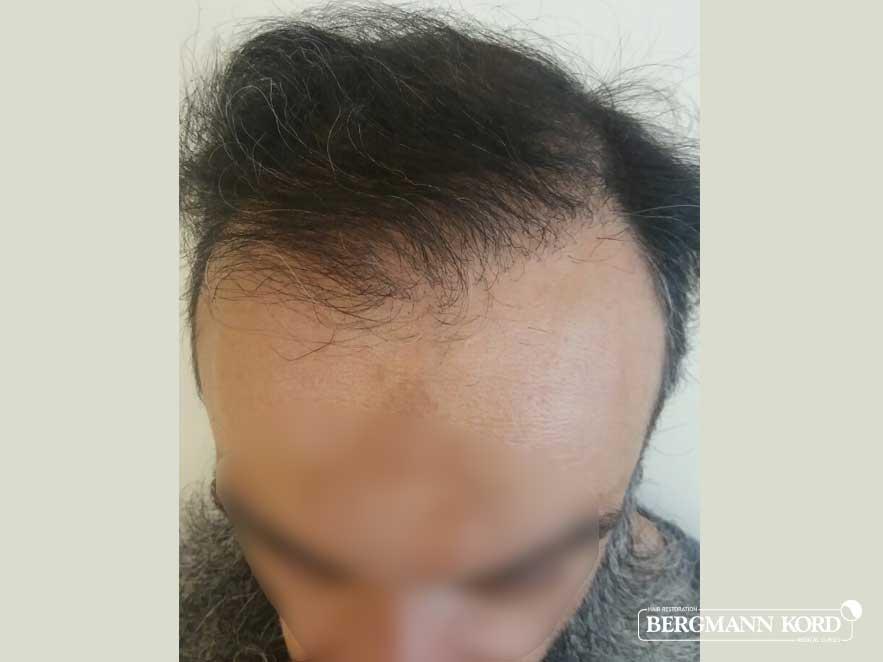 hair-transplantation-bergmann-kord-results-men-57005PG-after-top-001
