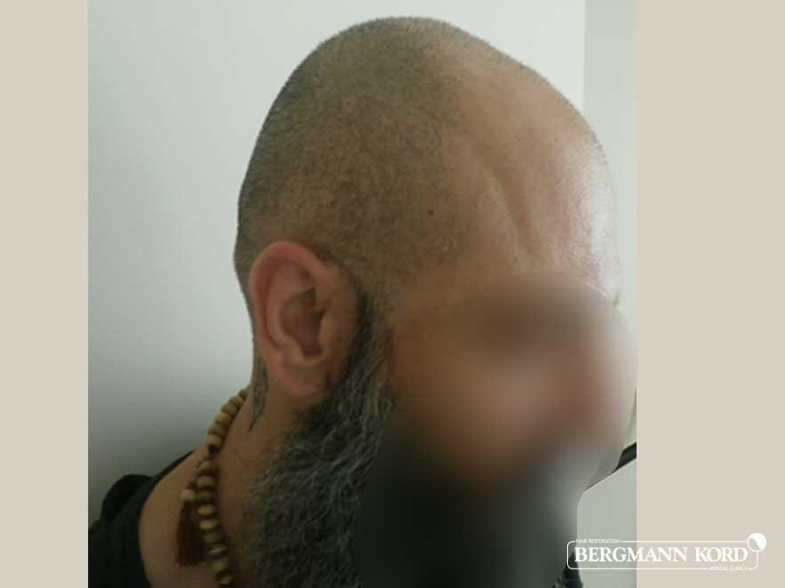 hair-transplantation-bergmann-kord-results-men-57005PG-before-right-001