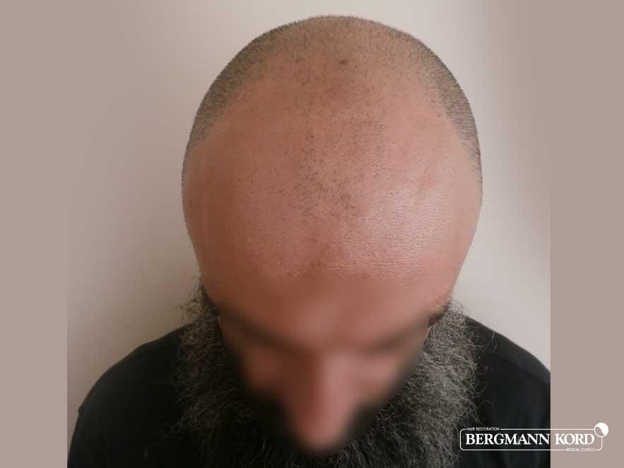hair-transplantation-bergmann-kord-results-men-57005PG-before-top-001