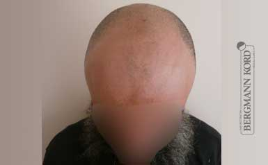 hair-transplantation-bergmann-kord-results-men-57005PG-thumb-001