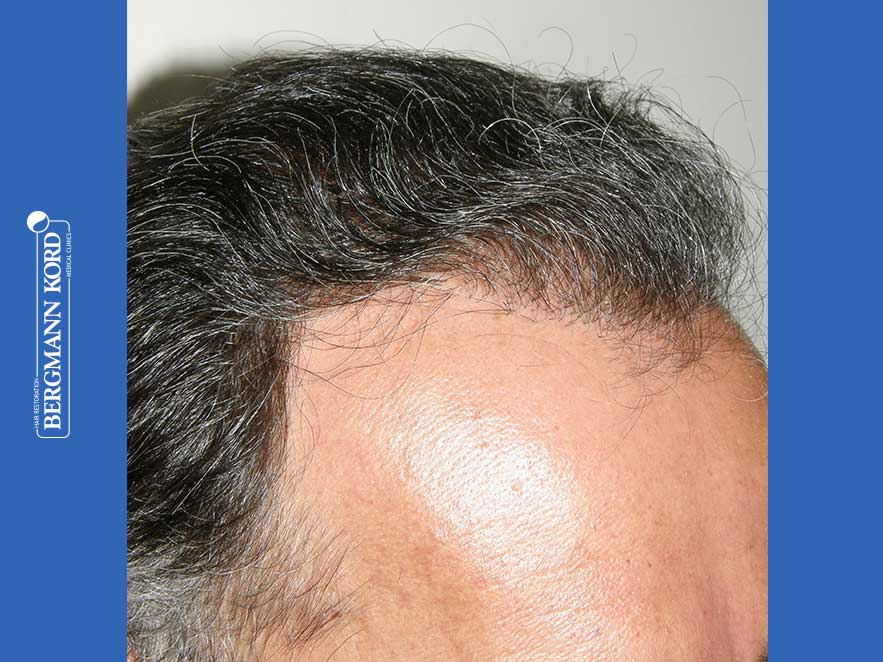 hair-transplantation-bergmann-kord-results-men-57030PG-after-right-001