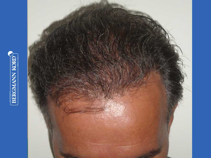 hair-transplantation-bergmann-kord-results-men-57030PG-after-top-001