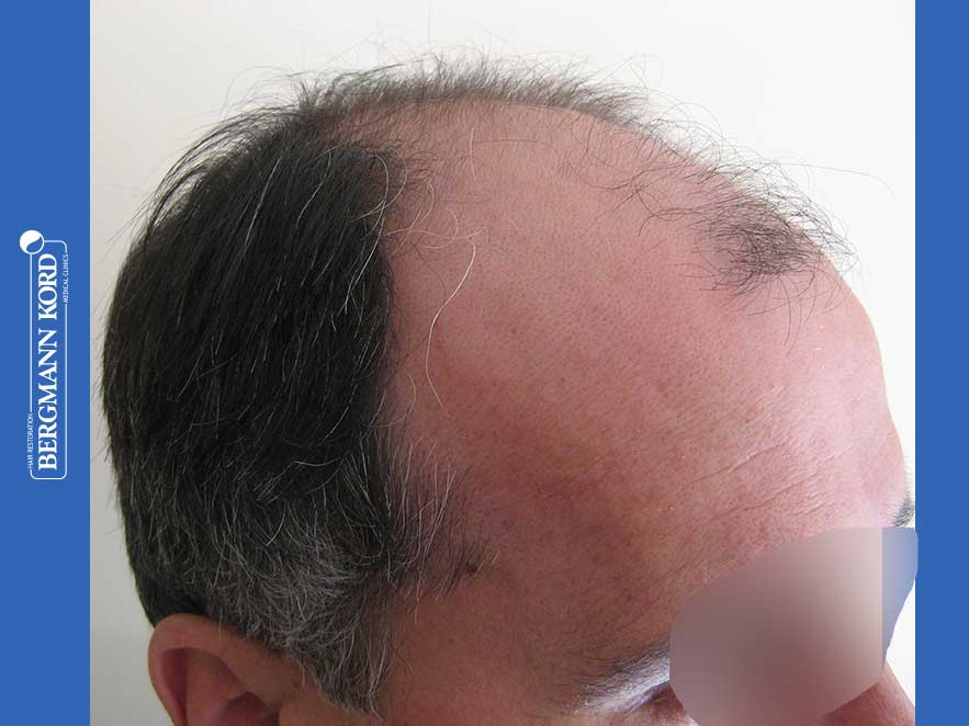hair-transplantation-bergmann-kord-results-men-57030PG-before-right-001