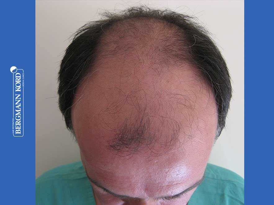 hair-transplantation-bergmann-kord-results-men-57030PG-before-top-001