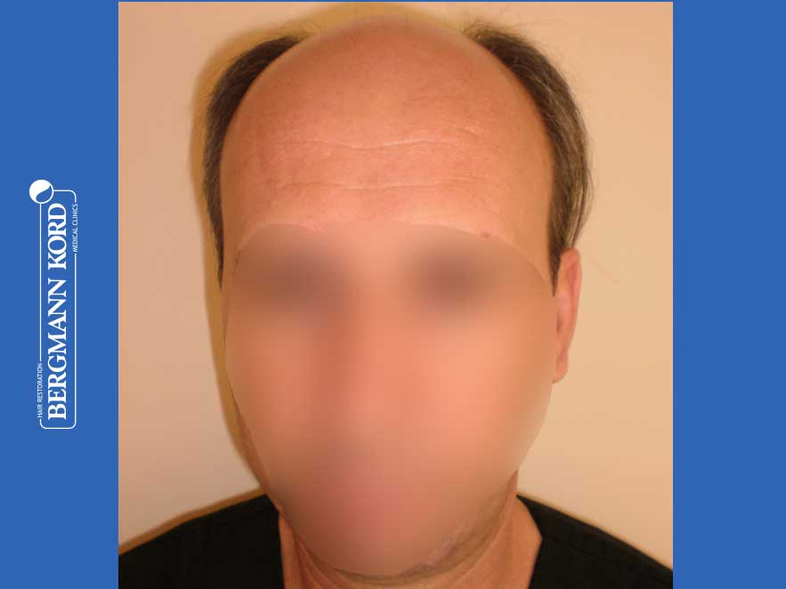 hair-transplantation-bergmann-kord-results-men-57045PG-before-front-001