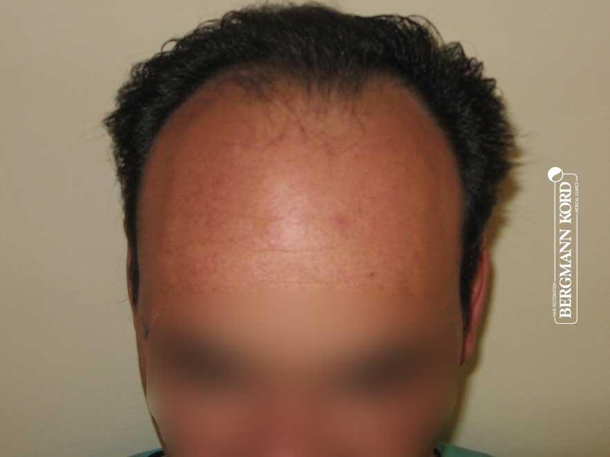 hair-transplantation-bergmann-kord-results-men-58025PG-before-front-001