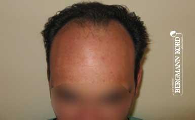 hair-transplantation-bergmann-kord-results-men-58025PG-thumb-001
