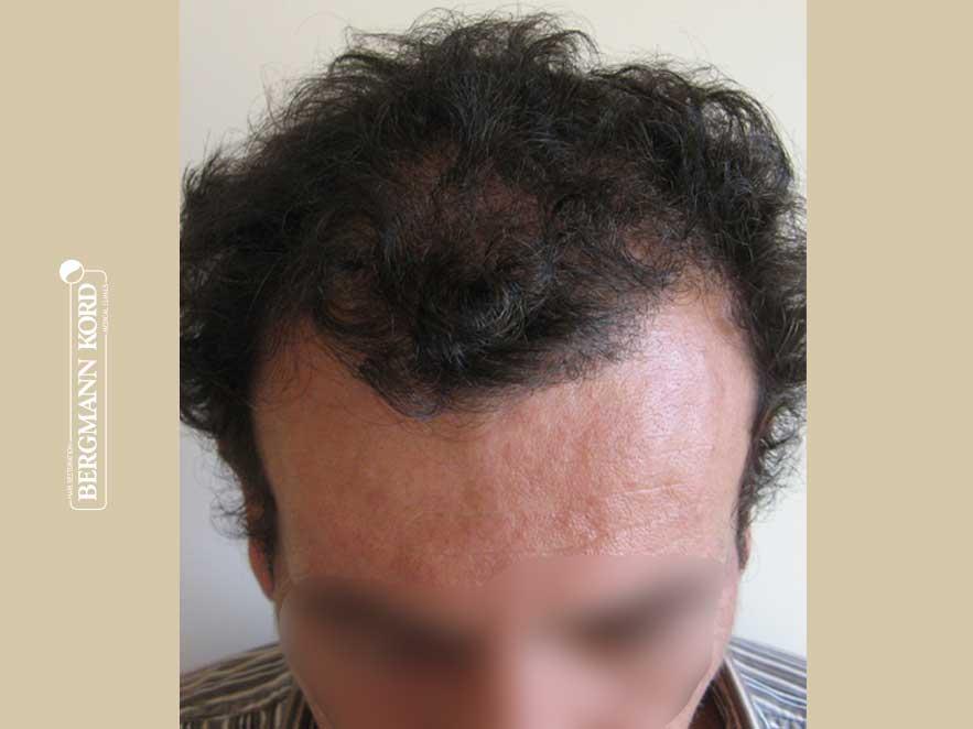 hair-transplantation-bergmann-kord-results-men-58031PG-after-top-001