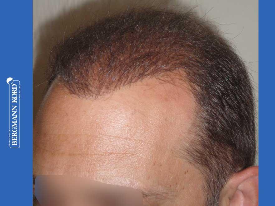 hair-transplantation-bergmann-kord-results-men-58054PG-after-left-001