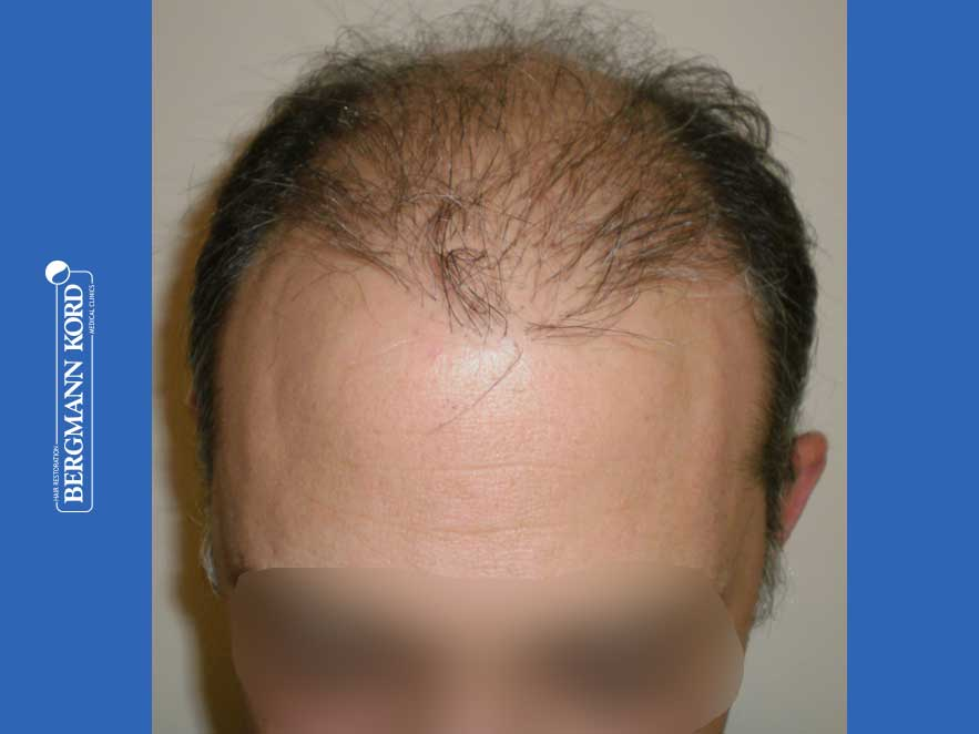 hair-transplantation-bergmann-kord-results-men-58054PG-before-top-001