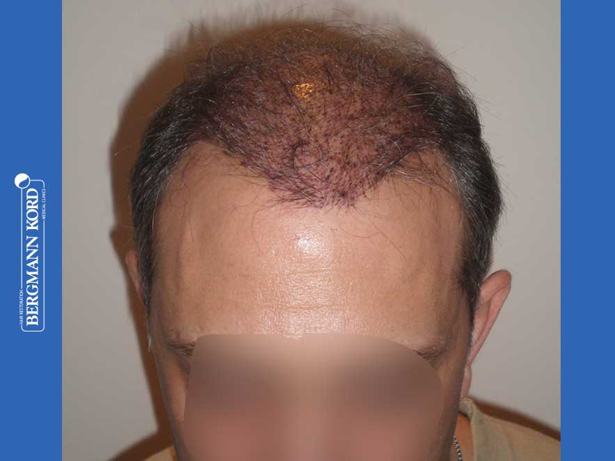 hair-transplantation-bergmann-kord-results-men-58054PG-this-day-front-001