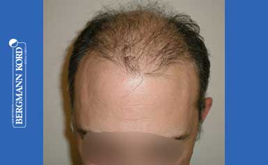 hair-transplantation-bergmann-kord-results-men-58054PG-thumb-001
