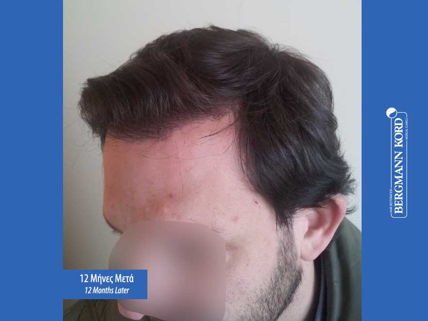 hair-transplantation-bergmann-kord-results-men-59033PG-12months-left-001