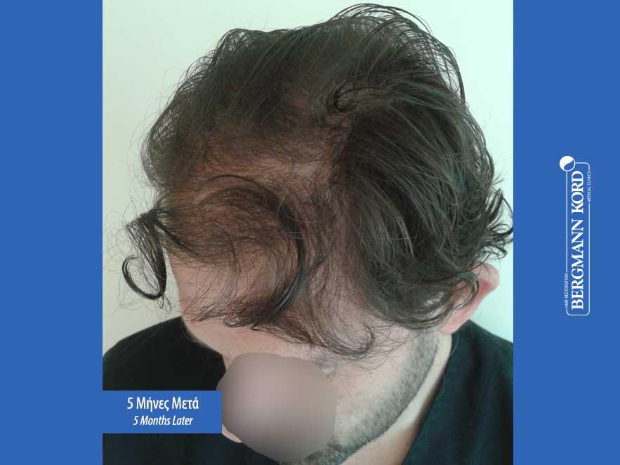 hair-transplantation-bergmann-kord-results-men-59033PG-5months-left-001