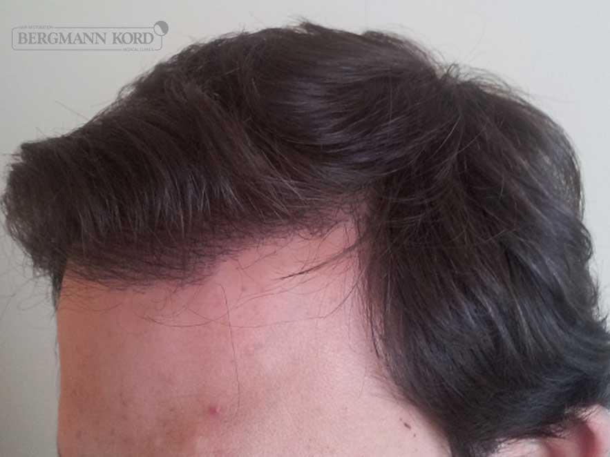 hair-transplantation-bergmann-kord-results-men-59033PG-after-left-001