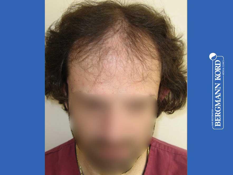 hair-transplantation-bergmann-kord-results-men-59033PG-before-front-001