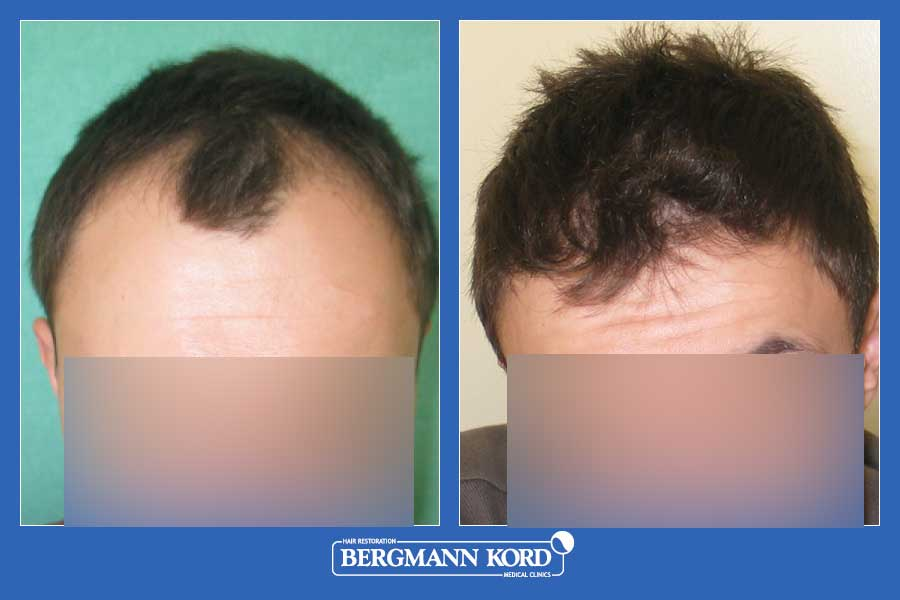hair-transplantation-bergmann-kord-results-men-59587PG-before-after-001