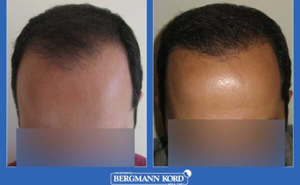 hair-transplantation-bergmann-kord-results-men-60200PG-before-after-001