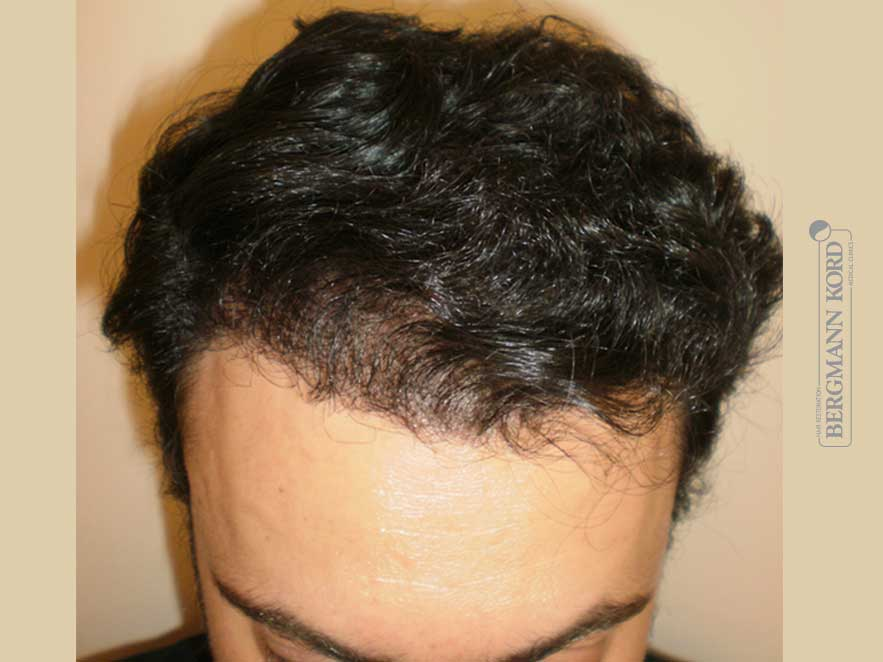 hair-transplantation-bergmann-kord-results-men-61011PG-after-top-001