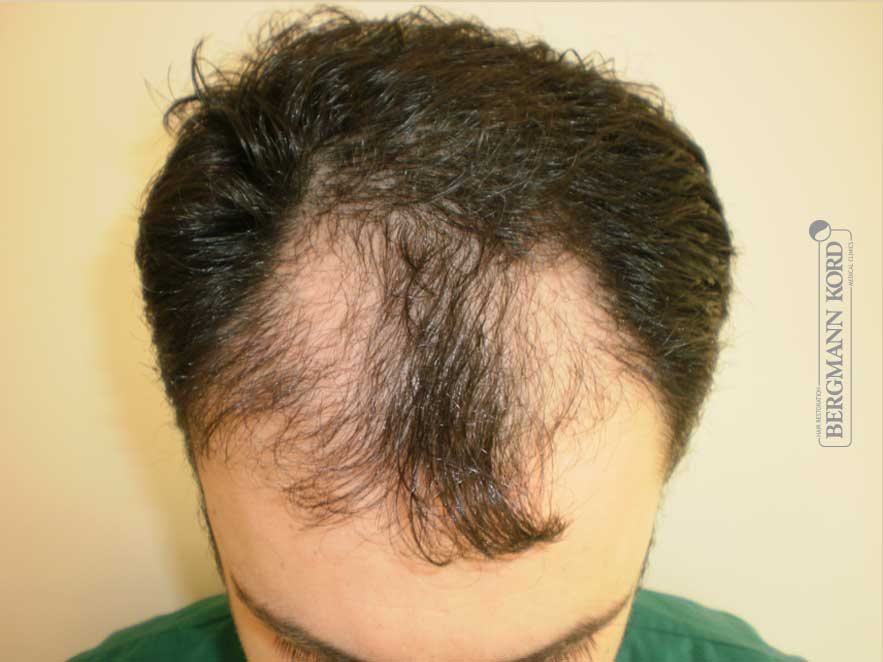 hair-transplantation-bergmann-kord-results-men-61011PG-before-top-001