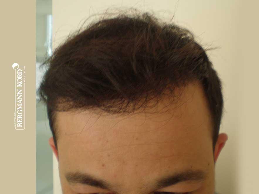 hair-transplantation-bergmann-kord-results-men-62017PG-after-top-001