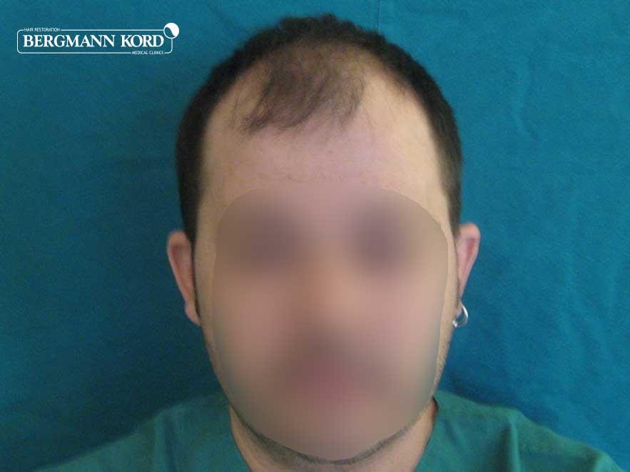 hair-transplantation-bergmann-kord-results-men-62017PG-before-front-001