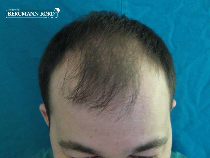 hair-transplantation-bergmann-kord-results-men-62017PG-before-top-001