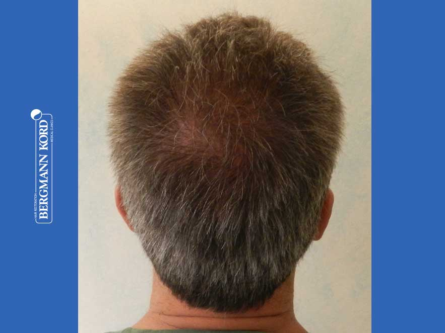 hair-transplantation-bergmann-kord-results-men-62020PG-after-back-001