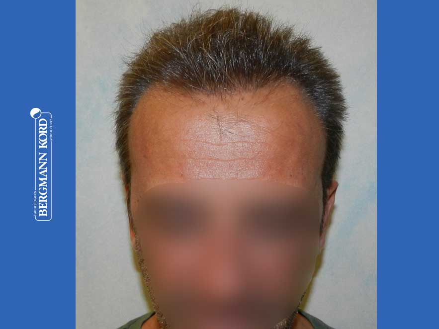 hair-transplantation-bergmann-kord-results-men-62020PG-after-front-001
