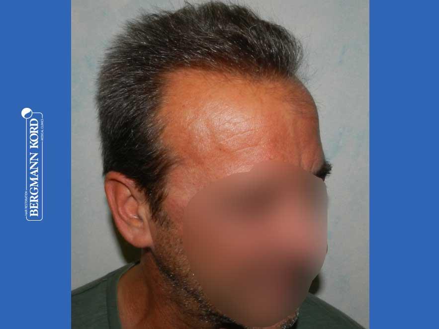 hair-transplantation-bergmann-kord-results-men-62020PG-after-right-001