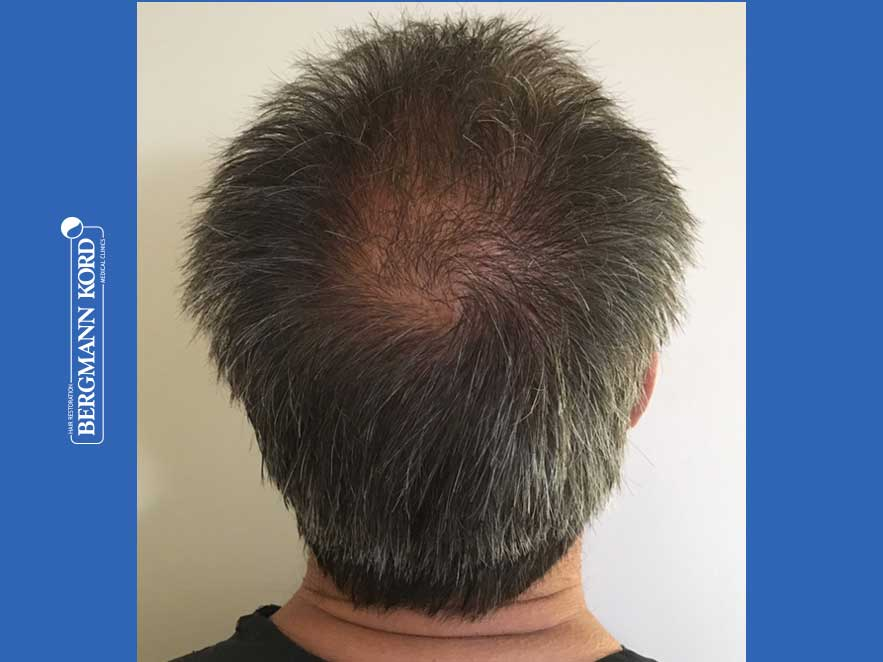 hair-transplantation-bergmann-kord-results-men-62020PG-before-back-001