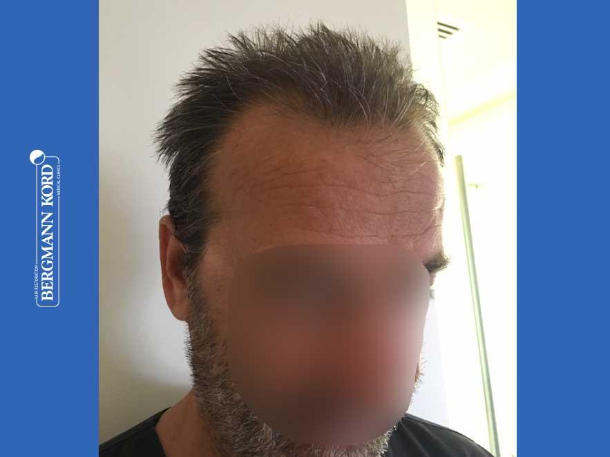 hair-transplantation-bergmann-kord-results-men-62020PG-before-right-001