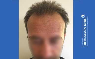 hair-transplantation-bergmann-kord-results-men-62020PG-thumb-001