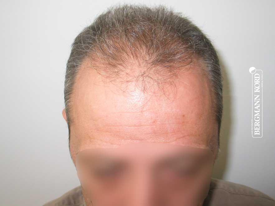 hair-transplantation-bergmann-kord-results-men-62043PG-before-front-001