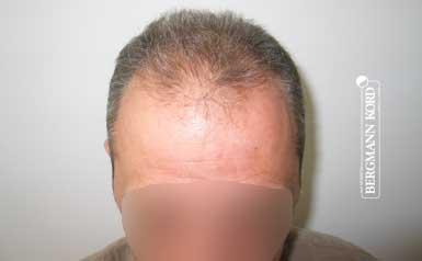 hair-transplantation-bergmann-kord-results-men-62043PG-thumb-001