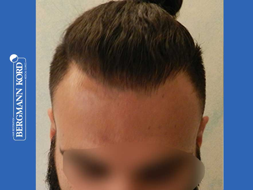 hair-transplantation-bergmann-kord-results-men-64051PG-10months-front-001